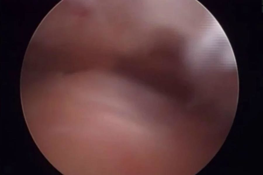 Акромиопластика и ротаторен маншон