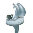Артропластика на коляното