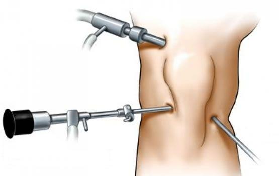 колянна артроскопия