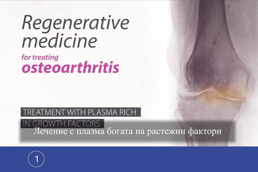 Лечение с обогатена плазма – Endoret – 1